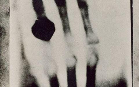Как Рентген изменил мир