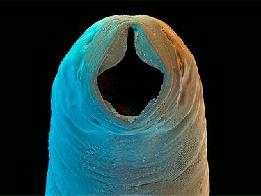 Паразитические черви справятся с астмой
