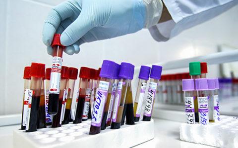 Россия увеличит ежегодные расходы на борьбу с ВИЧ до 30 млрд руб.