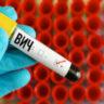Заболеваемость ВИЧ в Чувашии за год выросла почти на 40%