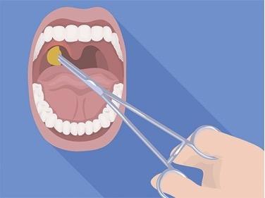 Чем отличаются аденоиды от миндалин, и нужно ли их удалять