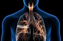 Микобактериоз легких