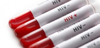 Каждый четвертый ВИЧ-инфицированный не знает о своем статусе
