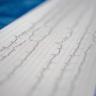 Найдены аномалии в ЭКГ у лечащихся от COVID азитромицином и гидроксихлорохином