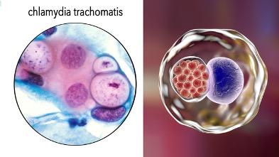 Коварство и любовь: тайны Chlamydia trachomatis